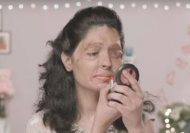Why you need to watch this acid attack victim's beauty tip!