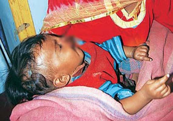Rajasthan man bites off 5-month-old baby's nose, lip, cheek