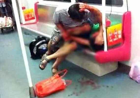 Shocking Chinese Boy Badly Bitten By 70 Year Old Man