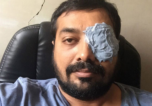 anurag kashyap brawl with mma player