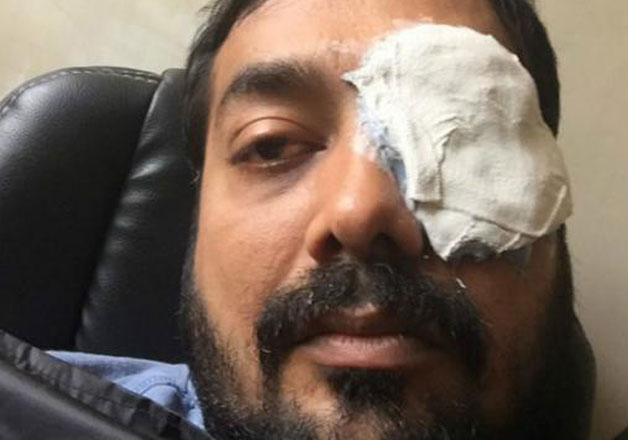 anurag kashyap in a brawl with a mma player