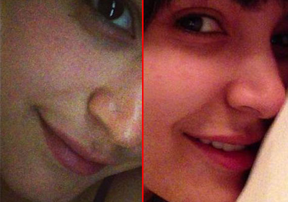 Anushka gets her lips augmented to kiss Aamir in 'PK' (watch pix)