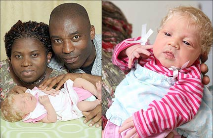 Nigerian couple has white baby