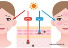How sun gives you wrinkles, skin cancer