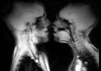 'Sex'-rayed! See how human bodies work from the inside during sex