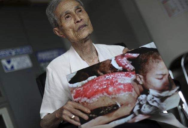 Nagasaki survivor picture