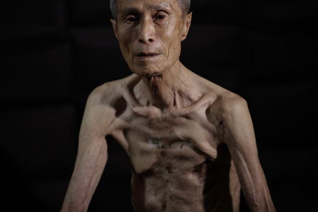 Nagasaki survivor