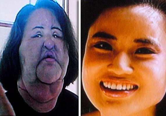Plastic Surgery Cooking Oil in Face