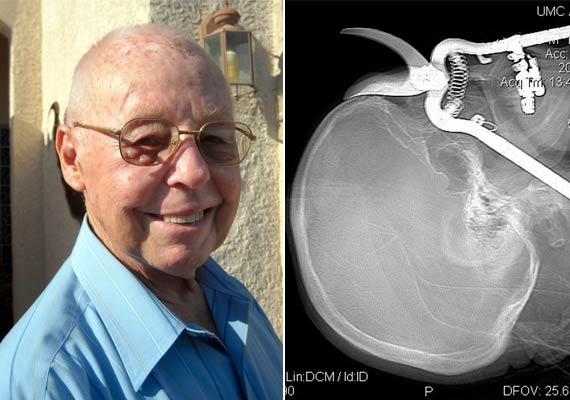 US Man Impaled Through Eye Socket By Pruning Shears