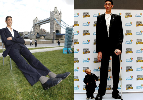 World's Tallest Man Finally Stops Growing, US Doctors Say