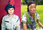 Sonali Mukherjee:10 facts telling the heart-rending tale of acid attack survivor