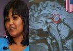 Hyderabad woman's brain tumour turns out to be 'evil twin'